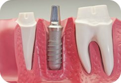 Dental Implants, Bridges, Partials In Houston Texas
