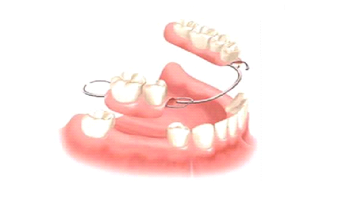 Houston Texas Denture Procedures