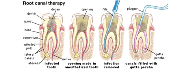 Houston Root Canal Therapy