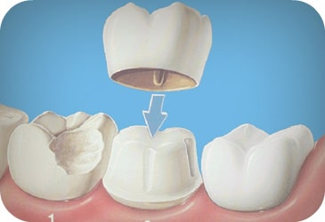 Dental Crown Services In Houston