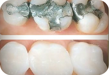 Tooth Colored Dental Fillings In Houston Texas